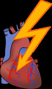Ilustrasi angin duduk yang disebabkan oleh tidak lancarnya oksigen ke jantung